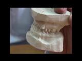 Диагностика глубокого прикуса. Пропедевтика ортодонтии.