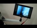 Импульсный лазер с камерой