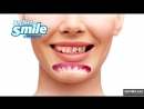 Виниры Perfect Smile Vaneers