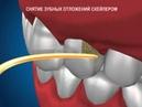 Гигиена , снятие зубных отложений скейлером