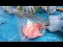 Наглядно механизм напряженного пневмоторакса (группа типичный анестезиолог)