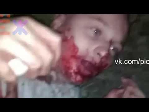 В Калининграде в лесополосе недалеко от ул Артиллерийской избили подростка