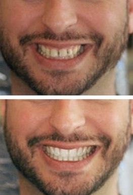 А вы знали, что существует зубная паста с эффектом пломбирования зубов?!😍