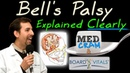 Bell's Palsy Explained Clearly Exam Practice Question