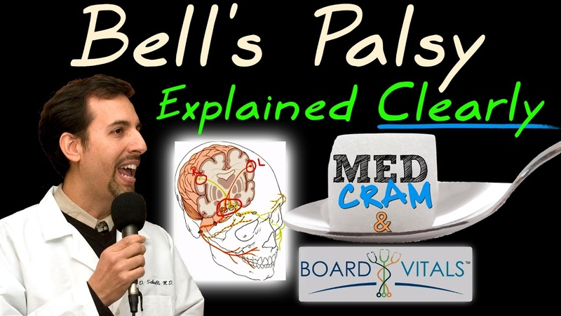 Bell's Palsy Explained Clearly - Exam Practice Question
