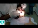 Индия. Лечим зубы в Индии. Дорого ли?