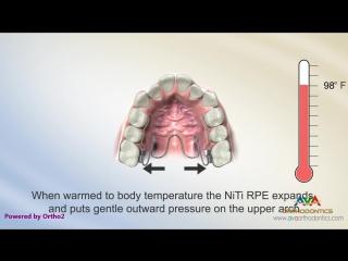 Expander - NiTi Type - Orthodontic Device. Пропедевтика ортодонтии.