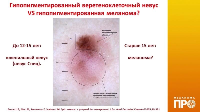 Дифференциальная диагностика редких меланоцитарных невусов и меланомы кожи