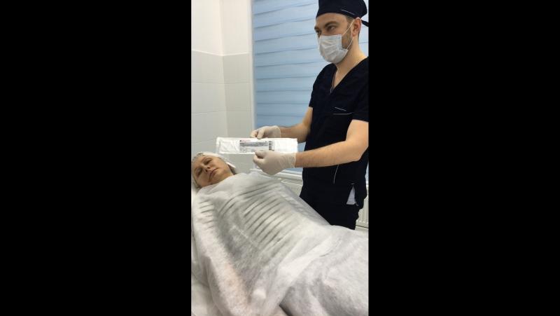 Постановка хирургических нитей.Коррекция нижней трети лица.