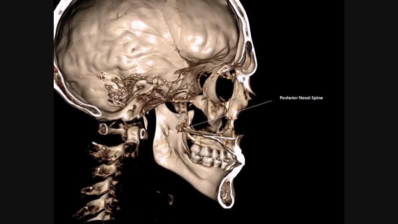 Posterior Nasal Spine (Snp) - задняя носовая ость