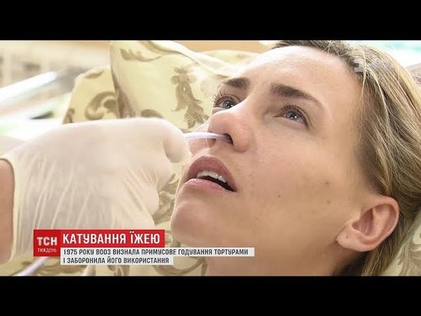 Голодування Сненцова: ТСН.Тиждень перевірила, що відчуває пацієнт під час годування через зонд