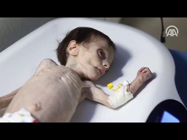 Gıdasızlıktan ölen Suriyeli bebeğin son anları kameraya yansıdı
