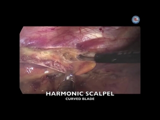Endoscopic harvesting of the left internal mammary artery