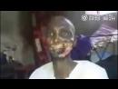 Face-partial-eaten-flesh-eating-disease-360.mp4