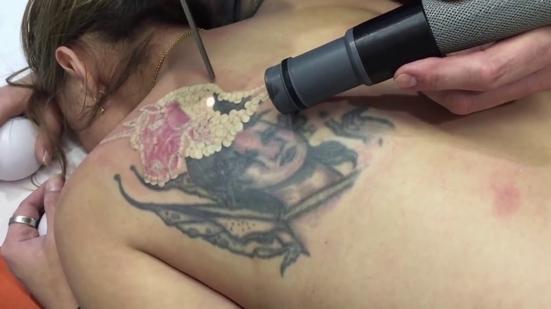 Removing Portrait Tattoo - Dövme kaldırma