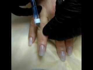 Ревитализация пальцев кисти рук