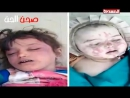Arrêtez la guerre au Yémen C'est l'histoire des enfants oubliés du Yémen des enfants