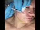 Препараты для молодости кожи MesoEye C71 и Meso-Wharton P199