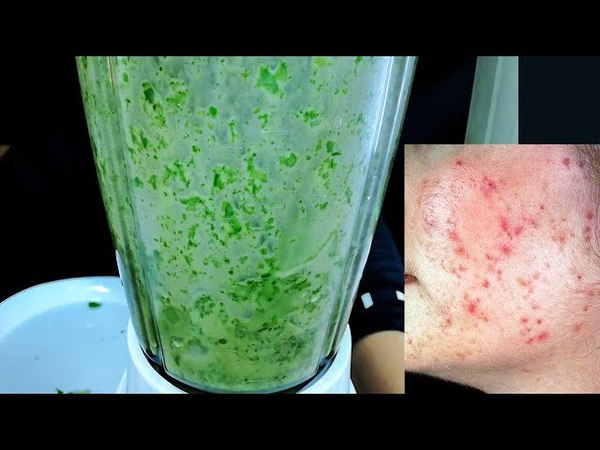 How To Remove Pimples Naturally| Acne Treatment |