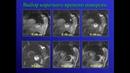 Железняк И С Магнитно резонансная томография в диагностике ИБС