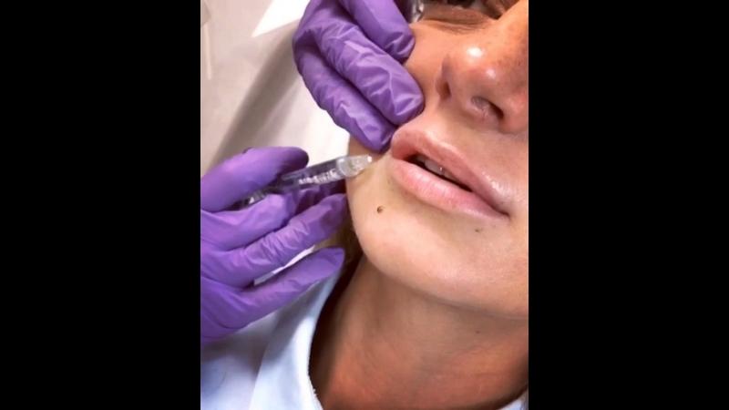 Увеличение объёма губ Juvederm Ultra Smile