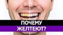 Почему ЖЕЛТЕЮТ ЗУБЫ? От чего появляется желтый налет? Цвет зубов и кариес!