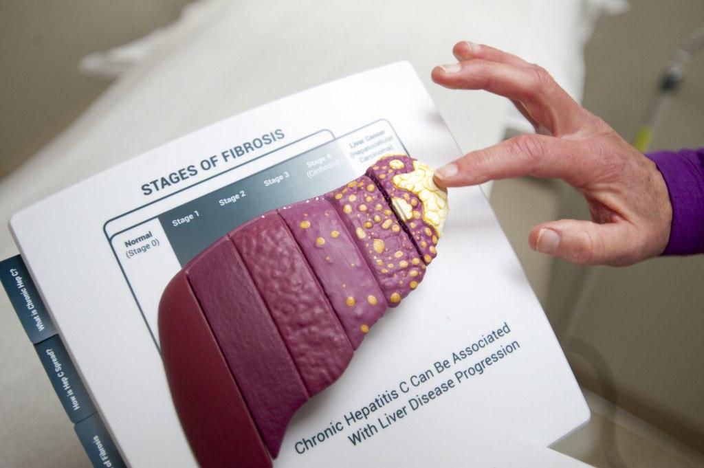 Различные этапы гепатита С?