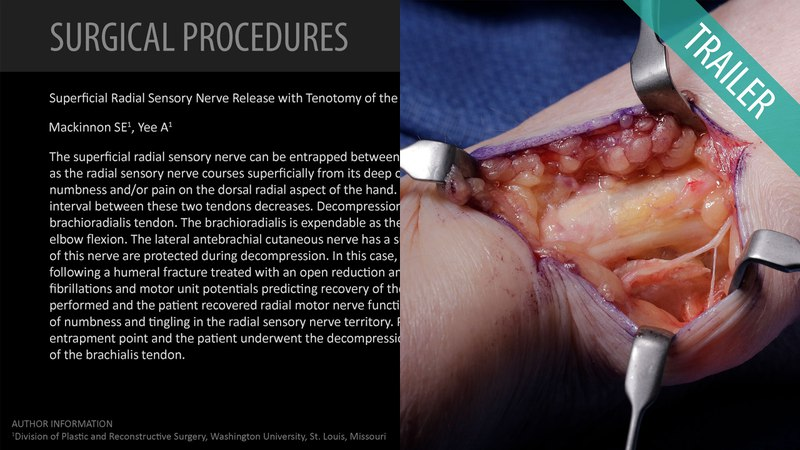Superficial Radial Sensory Nerve Release with Tenotomy of the Brachioradialis Tendon (Trailer)