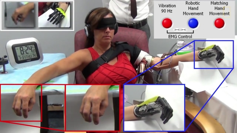 Sensation of Movement Recreated in Amputees' Robotic Arms