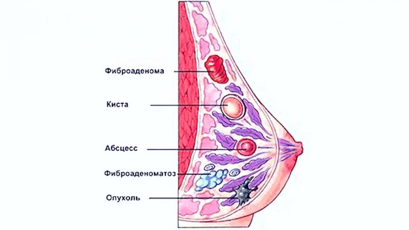 Как лечить рак груди Говорит ЭКСПЕРТ