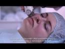 LPG массаж Эндермолифт Разглаживание морщин