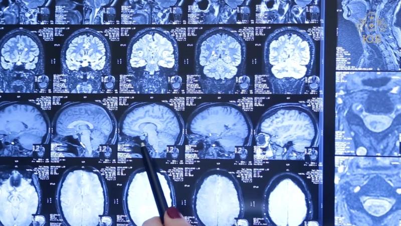 Диагностика деменции в Юсуповской больнице