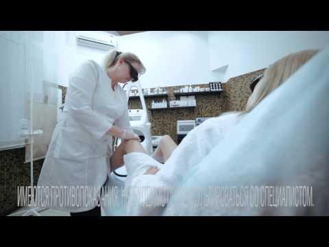 Интимное (вагинальное) лазерное омоложение в Волгограде