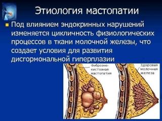 МАСТОПАТИЯ И ФЛУРЕВИТЫ. Рекомендации профессора Краснова М.С