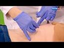 Иглорефлексотерапия иглоукалывание, акупунктура что лечат этим методом, в чем его польза