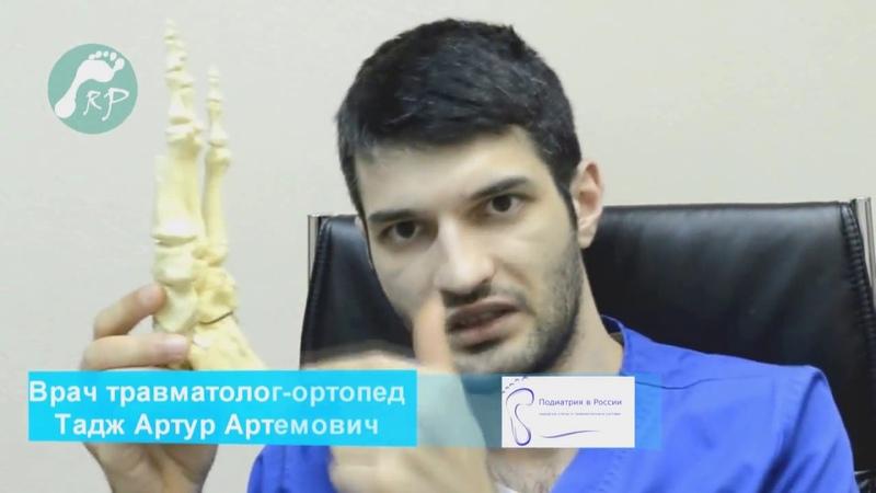 Пяточная шпора, симптомы и лечение