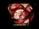 Удаление дермойдной кисты основания задней черепной ямки (18+)
