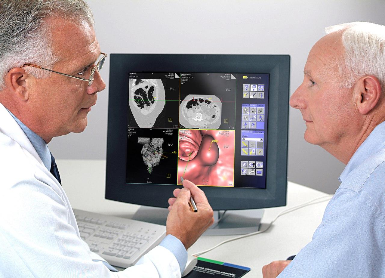 Что такое колоноскопия?