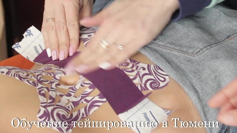 Обучение тейпированию в Тюмени