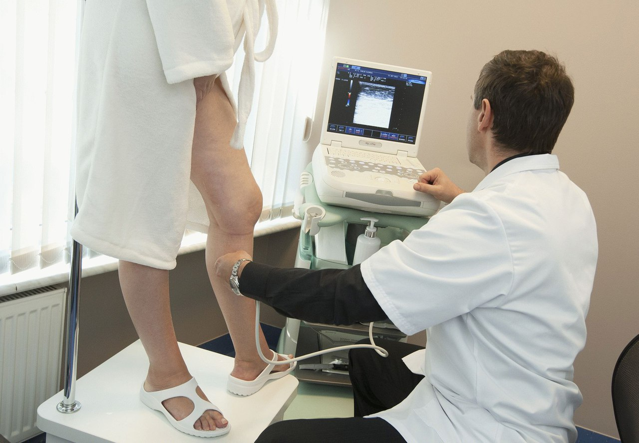 Варикозное расширение вен на ногах - лечение варикоза за границей