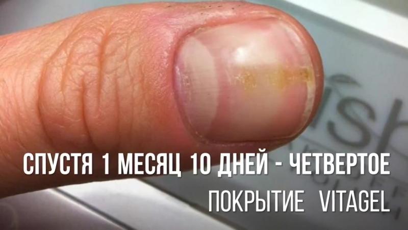 Gelish VitaGel - лечение и восстановление ослабленных и поврежденных ногтей