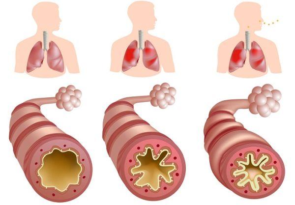 аортосклероз легких симптомы и стадии