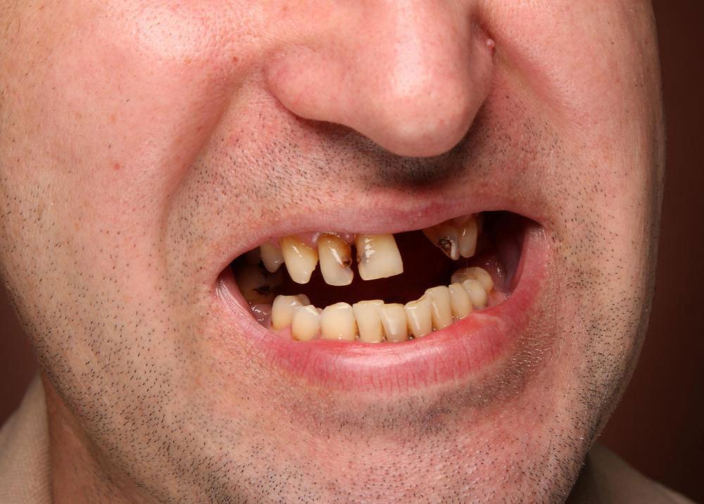 Зубные имплантаты обеспечивают эффективную замену для людей, потерявших зуб из-за заболевания десен.