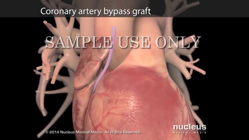 Treatment Options for Heart Failure - Nucleus Health