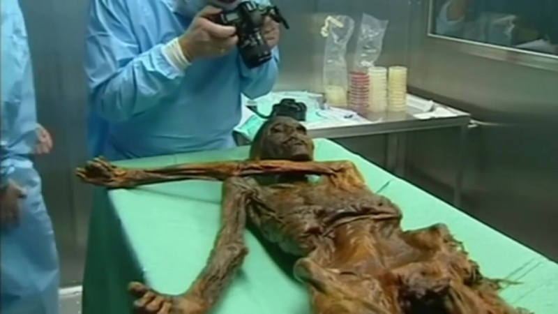 Worlds oldest mummified corpse had tummy bug