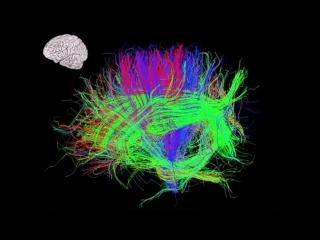 TED Talks: Антонио Дамасио. В попытках понять сознание (2011)