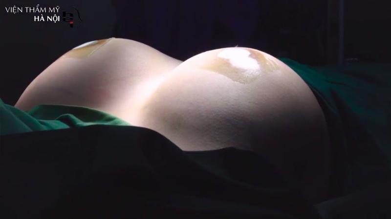 Phẫu thuật nâng ngực nội soi - Viện thẩm mỹ Hà Nội