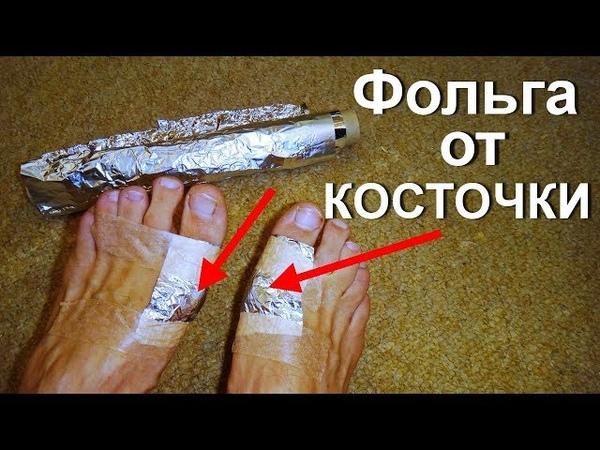Лечение фольгой косточек на ногах. Как остановить рост шишек на пальце? Вальгусная деформация стопы