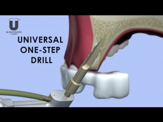 ULTRATOOTH IMPLANT THE FIRST EXPANDABLE IMMEDIATE LOAD IMPLANT. Зубной имплантат, готовый к установке за один прием
