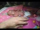Девочка, которая родилась на 15 неделе БЕРЕМЕННОСТИ и так хотела жить, что ВЫЖИЛА!